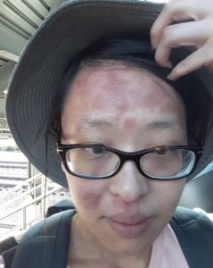 Photo of Catherine with red patches all over her face