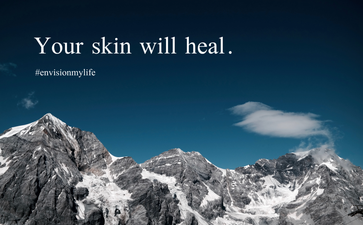 Your Skin Will Heal