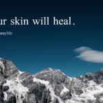 Your skin will heal.