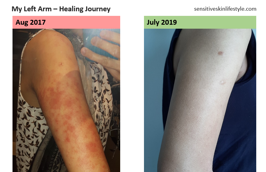 My Left Arm's Progress - August 2017 vs July 2019