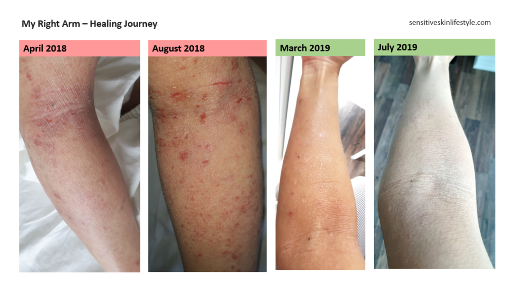 Progress Photos of my Right Inner Arm from April 2018 to August 2018 to March 2019 to July 2019